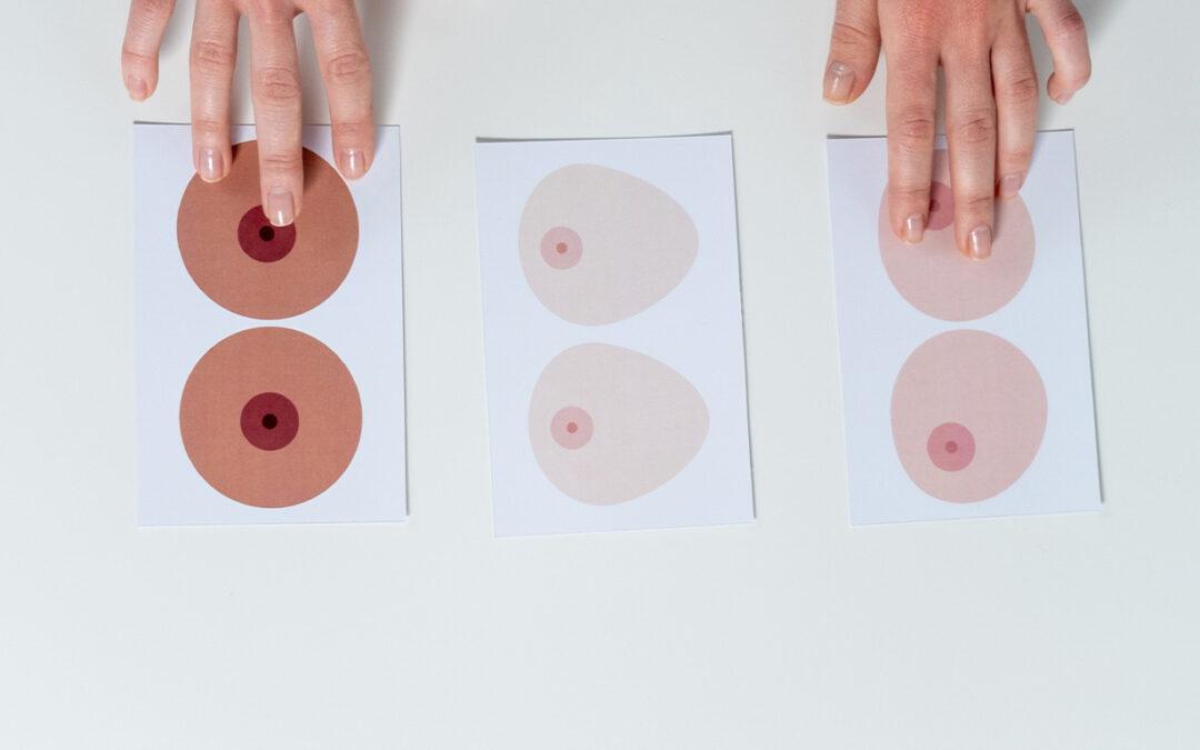 Mamografía: importancia de un diagnóstico temprano