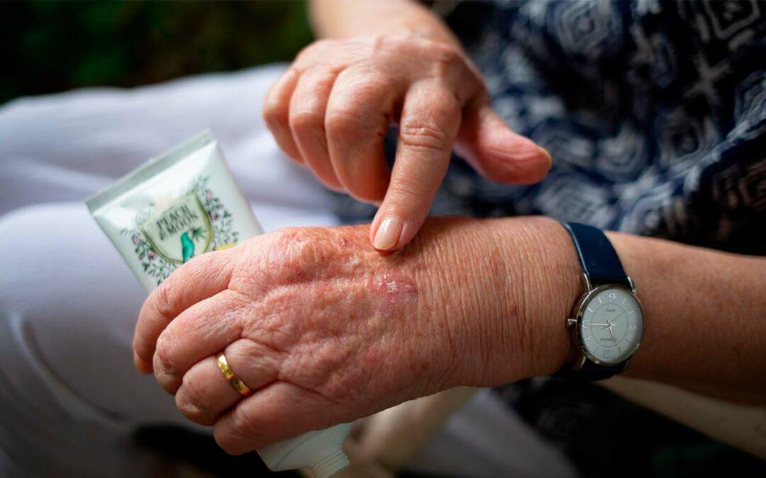 Artritis infecciosa: ¿cómo se genera?